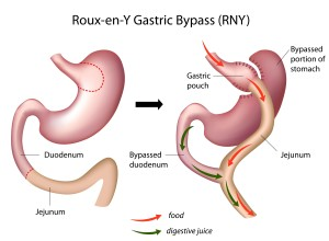 Laparoscopic Gastric Bypass ReY